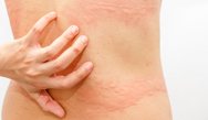 Taking a More Target-Specific and Aggressive Approach to the Management of Chronic Urticaria