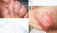 Changing Landscape of Biological Therapies for Psoriasis: Promising Efficacy of Interleukin-17 (IL-17) and IL-23 Pathway Inhibitors