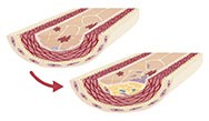 Targeting Vascular Inflammation to Reduce Cardiovascular Risk