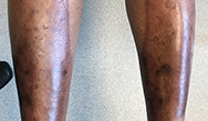 Dermatology Clinics and Challenges: February 2018