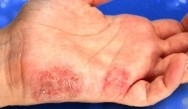 Pathophysiology and Treatment of Psoriasis - Integrating Systemic Biologics into Treatment Plans for Patients with Moderate-to-Severe Plaque Psoriasis