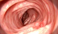 Identification and Resection of Precancerous Lesions in GI Tract