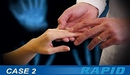 RAPID Case Study 2: Vaccinations with a Newly Diagnosed Rheumatoid Arthritis Patient