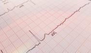 50 Online ECG Case Studies