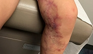 Dermatology Clinics and Challenges: July 2018