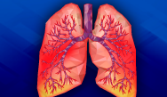 Coping with COPD: Meeting GOLD Standards of Care