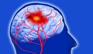 Stroke Risk Doubled in Myopathy