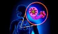 Advances in the Treatment of COPD