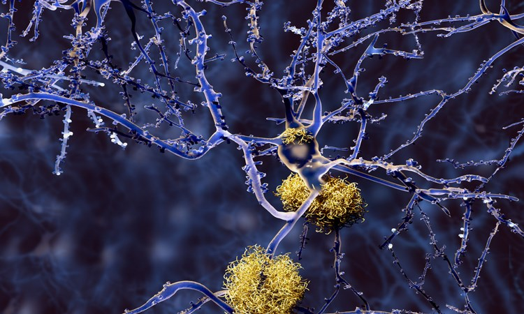 Overcoming Clinical Challenges in Alzheimer's Disease: Implementing Novel Diagnostic Methods and Therapies