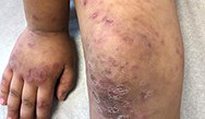 Dermatology Clinics and Challenges: October 2018