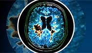 Treatment Approaches and Therapies for Highly Active Multiple Sclerosis: Implementing Updated MS Guidelines