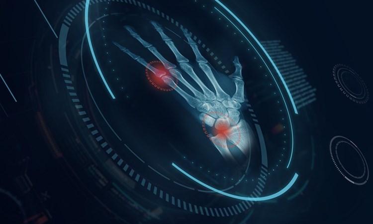 Steps Ahead: Emerging Therapies in Psoriatic Arthritis