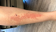 Dermatology Clinics and Challenges: December 2018