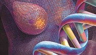 Addressing Whole-Genome Sequencing and Breast Cancer in Primary Care