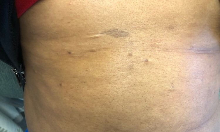 Dermatology Clinics and Challenges: February 2019
