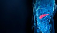 ExpertPerspectives: Advances in the Management of Pancreatic Cancer: From Bench to Bedside