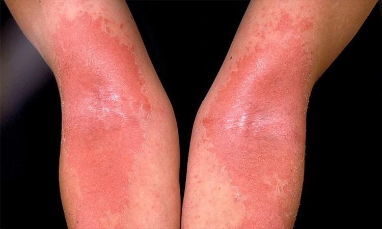The New Paradigm in Atopic Dermatitis Treatment