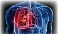 Optimizing the Use of Targeted Therapies in First and Subsequent Lines of Treatment for ALK-Positive Non-Small Cell Lung Cancer