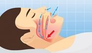 Obstructive Sleep Apnea (OSA) and Positional Obstructive Sleep Apnea (POSA)