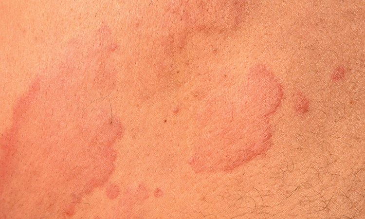 Clinical Reflections<sup>®</sup>: Reflecting on Errors and Missed Opportunities in Chronic Urticaria
