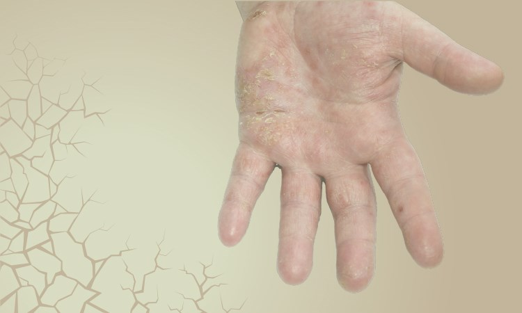 A Pathophysiologic Basis for Evidence-Based Treatments of Moderate-Severe Atopic Dermatitis