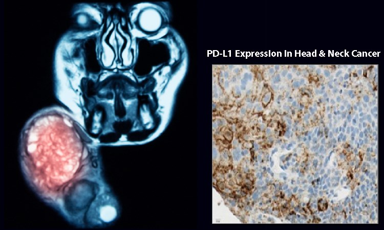 Changing Treatment Landscape of Metastatic Head and Neck Squamous Cell Carcinoma with Anti-PD-1/PD-L1 Agents