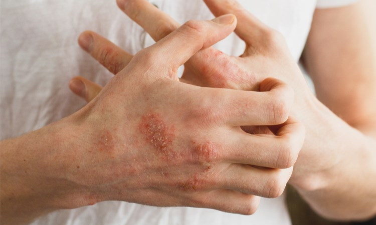 Atopic Dermatitis: Improving Outcomes Through a Patient-Centered Approach