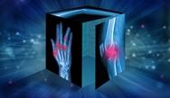 Escape Rheum: Cracking the Code to Rheumatoid Arthritis Treatment