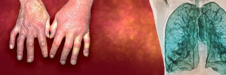 Is it SSc-ILD? How to Properly Diagnose and Treat a Rare, Multifaceted Disease