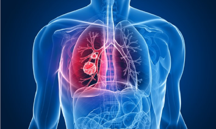 Preventing Admission in Severe COPD; Clinical Implications of the HOT-HMV Trial